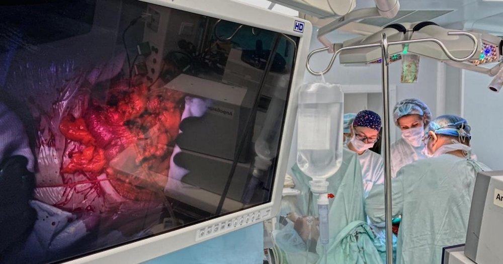Хирургии печени и поджелудочной железы