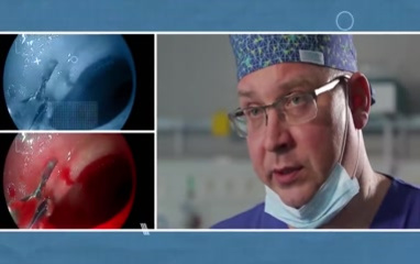 Gastric ulcer: causes,...